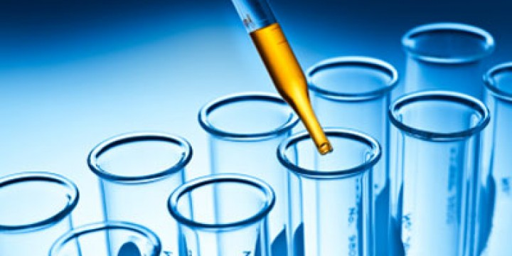 medical-lab-test-results-irvine-ca-720×360